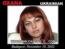 Woodman Casting
