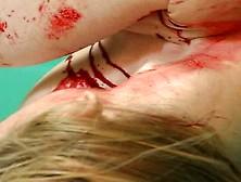 Zombie Bite Morgue