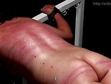 Elite Pain - Dr Lomp Case 4 - Part 1